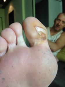 Wonder how my toe is after the training?