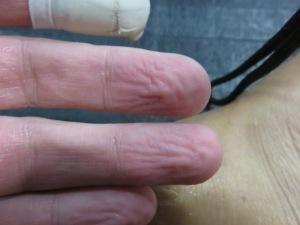 Bathtub fingers after BJJ. You know it's sweaty work