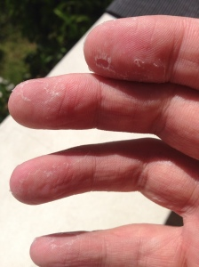 Skin coming of finger, toes and palms